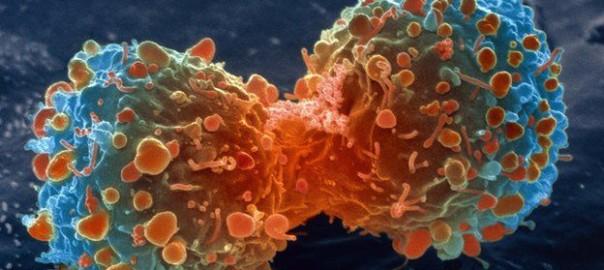 _83307904_m1320644-lung_cancer_cell_division,_sem-spl