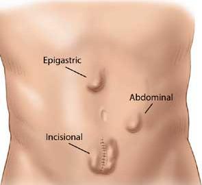 abdominal-hernia-bulges